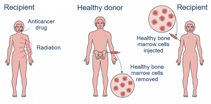bone marrow fix